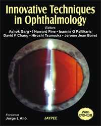 Innovative Techniques in Ophthalmology
