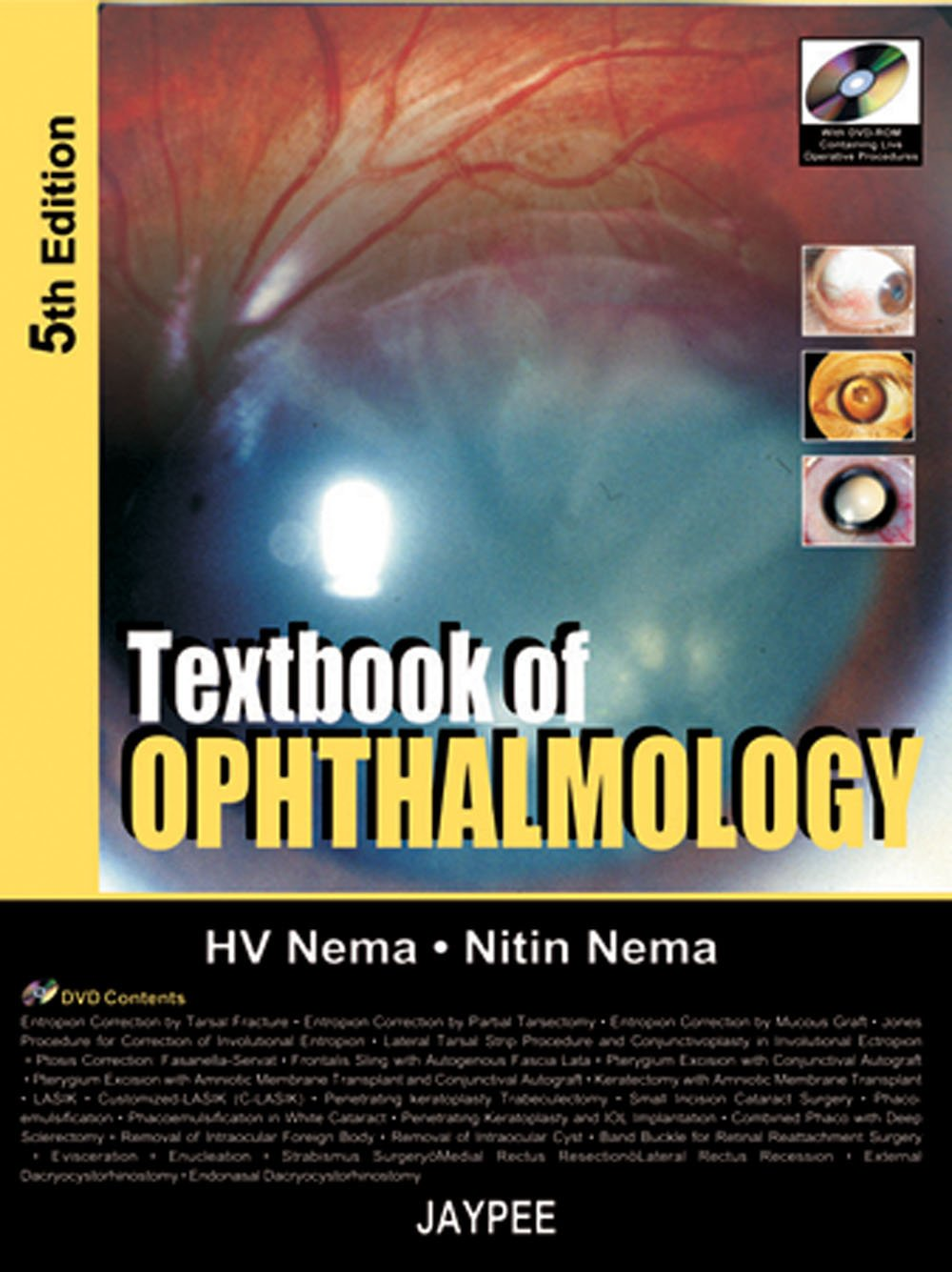 Textbook of Ophthalmology, 5th Edition