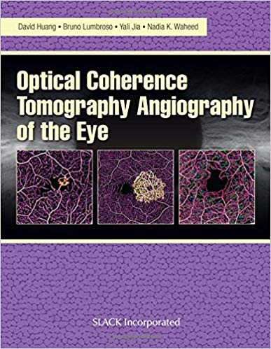 Optical Coherence Tomography Angiography of the Eye: OCT Angiography