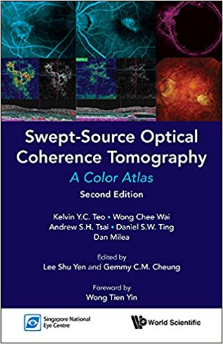 Swept-Source Optical Coherence Tomography:A Color Atlas 2nd Edition