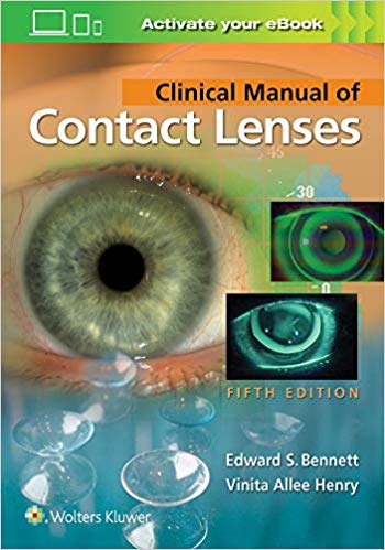 Clinical Manual of Contact Lenses 5th Edition