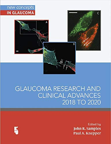 Glaucoma Research and Clinical Advances 2018 to 2020